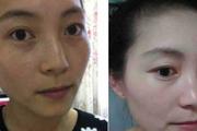 祛斑哪那么复杂£¿广州52岁保姆阿姨每天用它£¬一月皮肤嫩白细腻