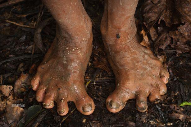 腳趾與腳掌連接處有黑痣要去掉嗎圖片