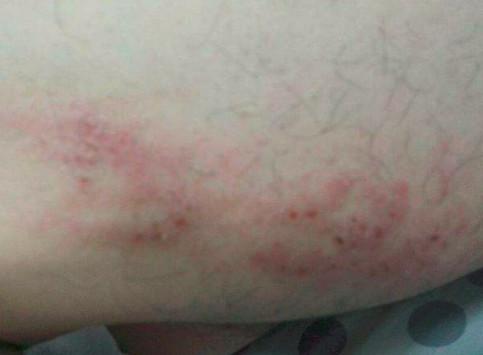 内侧红斑事宜瘙痒?几点感谢女生一定要注意怎么大腿图片