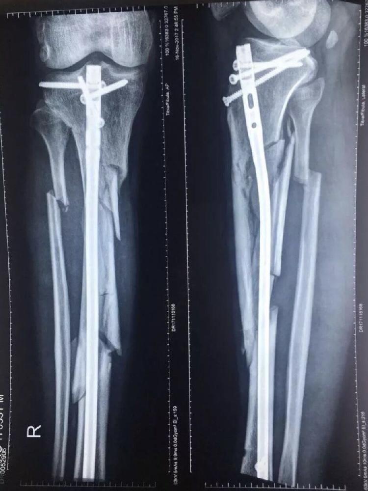 一民办院长视频打断自杀生前被跳楼腿医院曝视频教程下载计算机图片