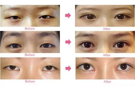 割完双眼皮后需要多长时间才能痊愈,长得自然,没有疤痕?