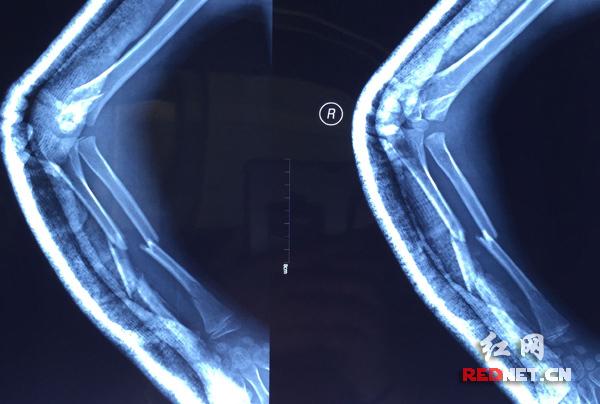 手胳膊关节结构图