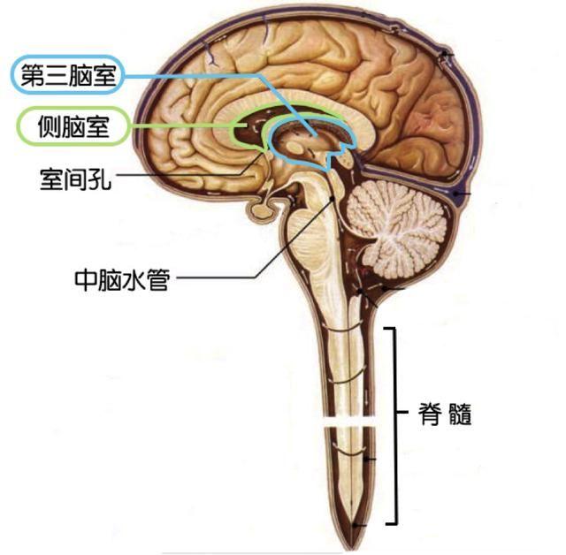能不能确诊脑积水或者脑部结构没问题