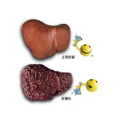 脂肪肝可发展为肝癌 预防脂肪肝做好这3点
