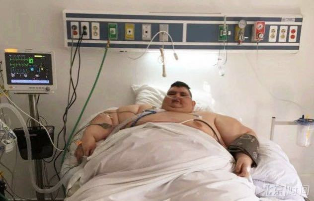 世界最胖男子再次手术切除肠胃 有望减至120公斤