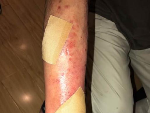 皮肤病怎么办早发现早治疗