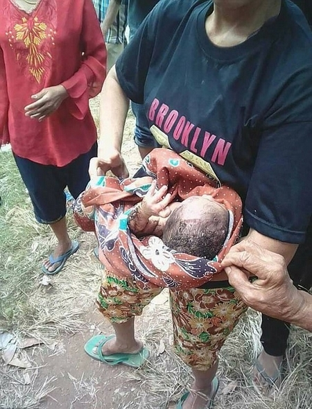 【转】北京时间       揪心!印尼一新生儿被埋化粪池后奇迹生还 - 妙康居士 - 妙康居士~晴樵雪读的博客